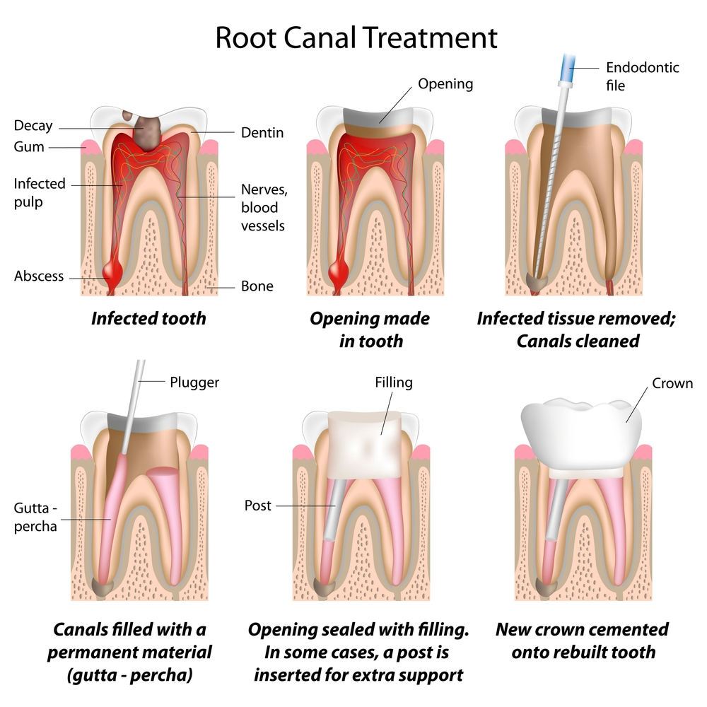root canal treatment | resolution specialist treatment centre