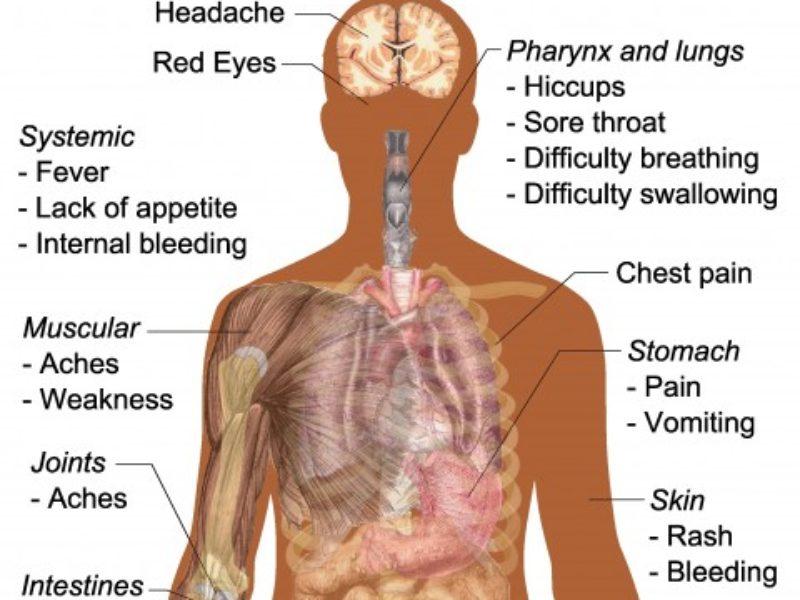 Symptoms_of_ebola-2-480x484
