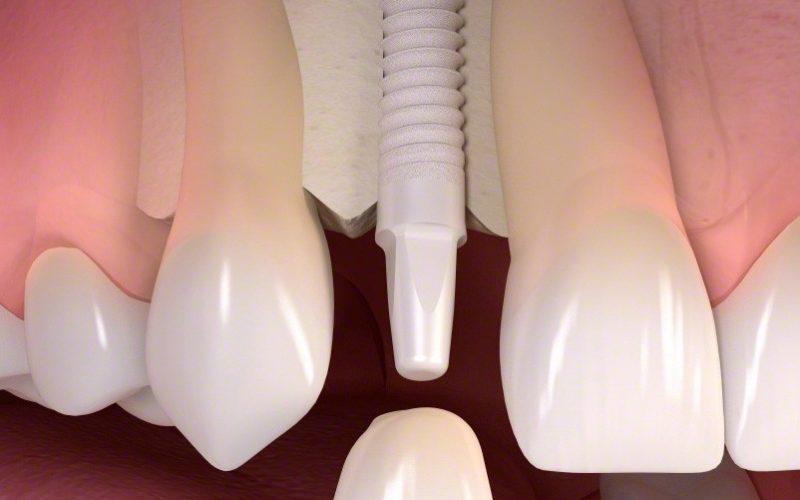 ceramic-implant-image-2