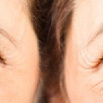 Skin Rejuvenation - Resolution Specialist Treatment Centre