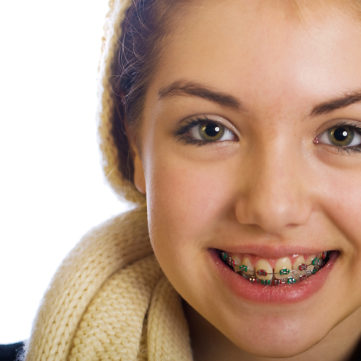 teen girl with fixed braces