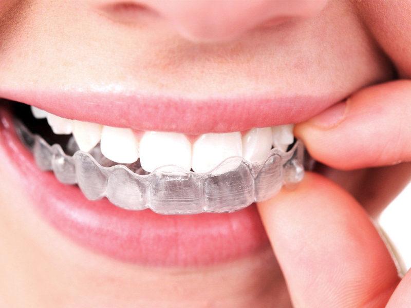 Reso-Smile-Invisalign-1024x768