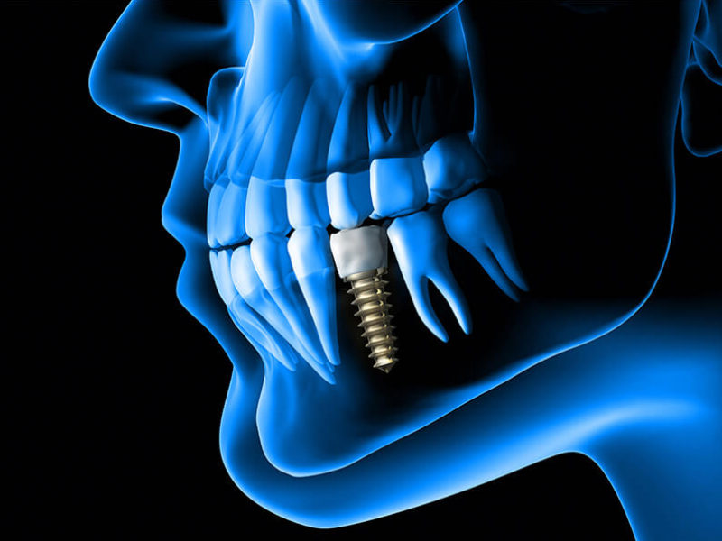 Dental Implants: Step-by-step